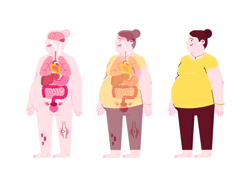 X-Ray - Scan obesity aftereffects animation artist motion vector 2d texture dribbble design illustration designinspiration