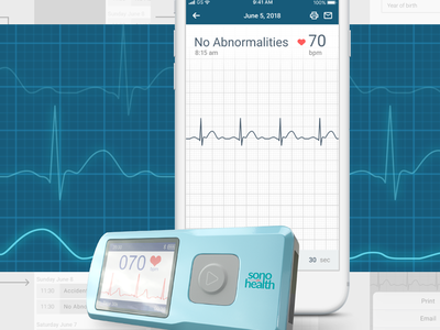 ECG monitor app medical app bluetooth ecg app ui