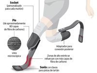 Prosthetic foot infographic