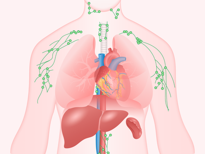 Lymphoma Medical Illustration