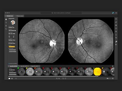 Medical Application user flows dark ui dark application desktop app medical app medical eyes optometry health healthtech healthcare