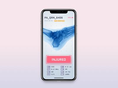 X-Ray App ux ui bones body ai learning machine injury medical x xray iphone