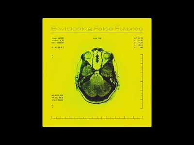 X-Ray Head — Album Cover Design album artwork skull head neon scan xray x-ray brain scan brain album design album cover design album art album design illustration