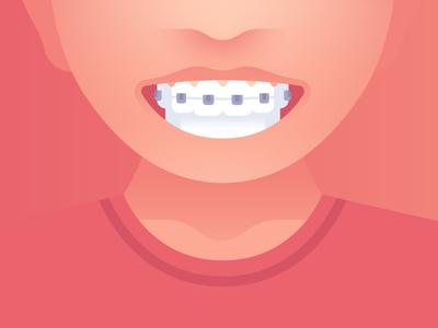Remember to Smile joy happy smile teeth braces patient characters design dentist dental revenuewell illustration flat