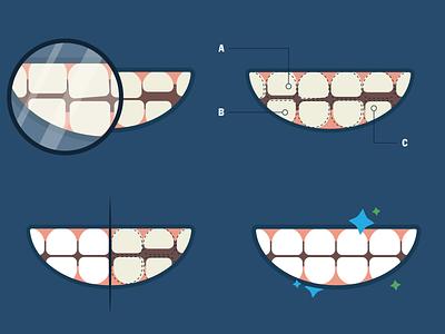 Prosthodontic Process Illustration illustration teeth mouth vector wierstewart web design process