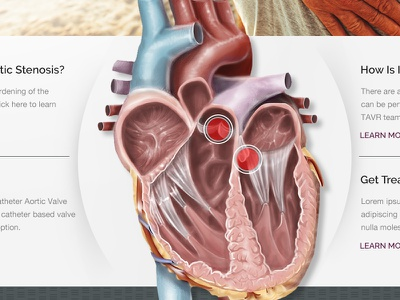 Heart Valve website redesign one page landing page medical healthcare health responsive web