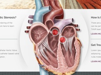Heart Valve website redesign