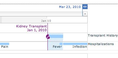 Transplants chart