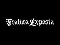 Fratura Exposta II