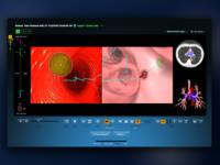 Bronchoscopic Surgical Navigation UI - Path Navigation