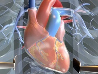 Surgical Aortic Valve Replacement