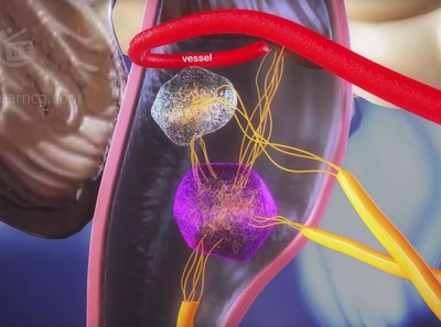 medical animation vomiting and nausea medical production