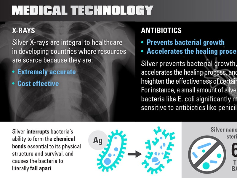 infographic infographic silver icon xray