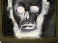 X-Ray-Abe