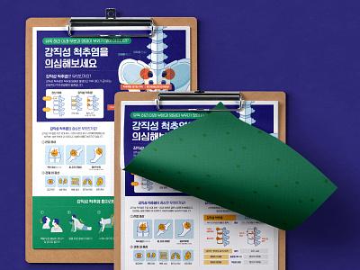 [Infographic] Ankylosing spondylitis Poster information editorial poster data infographic graphic design vector illustration