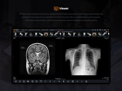 ZEP Viewer Present physicians and radiologists medical care patient medical design hospital healthcare doctor