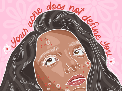 Your Acne Does Not Define You web typography illustration design