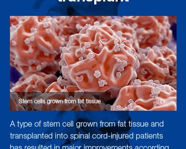 """Spinal cord repair"" timeline for BBK history health dates blue timeline"