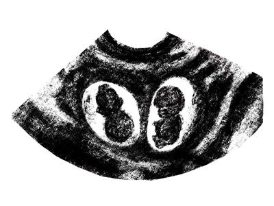 Embrio sonogram sonogramtwins