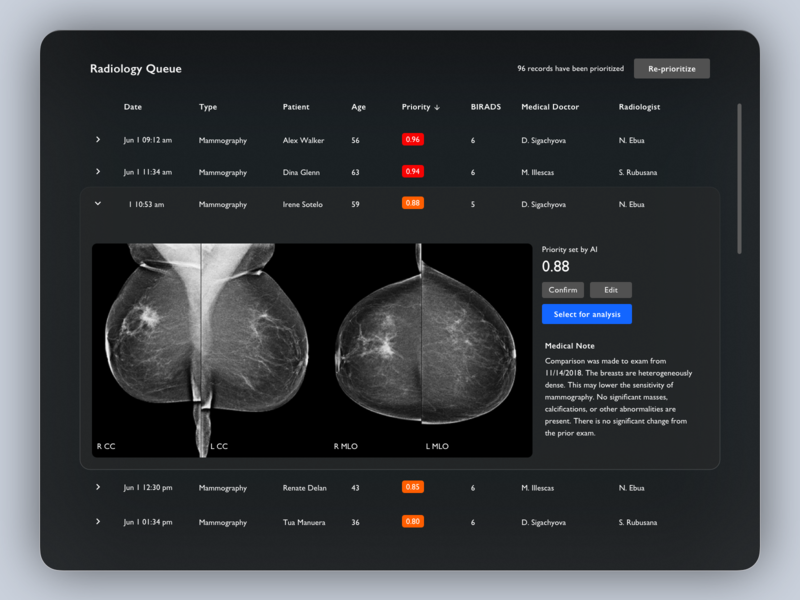 Radiology AI health care computer vision artificial intelligence tooploox table dashboard