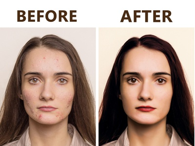 High End Skin Retouch skin retouch image editing colour correction photoshop retouch