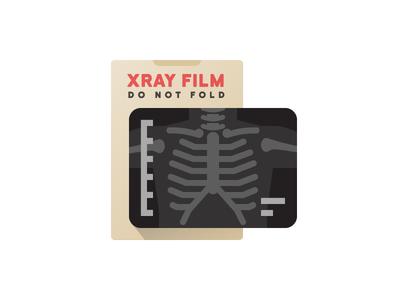 Chest Xray doctor hospital bones spine medical xray
