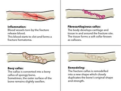 bones anatomy vector healing drawing adobe illustrator illustration bones