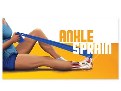 Ankle Sprain Digital Ad