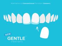 Gentle Veneers Brand Visual