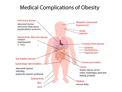 Anatomy of human body weight overweight over obesity obese medical infographic human fat complication cartoon body anatomy medicine science system organ anatomical internal illustration