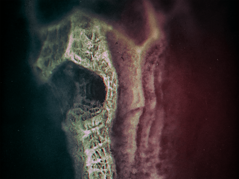 Biocorrection Diagnosis 4: Airlessness dribbbleweeklywarmup spooky challenge xray viscera tissues radiograph organic illustration health guts digital painting dark creature concept bowels bones beksinski ambient accident