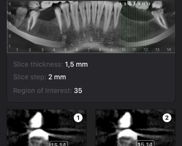 Make diagnostics in dentistry error-free ios ui  ux design app dentistry diagnostic health app medical app