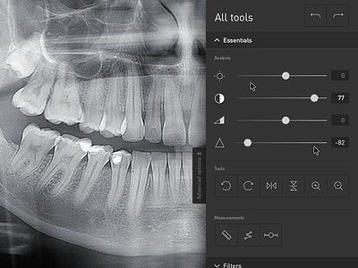 App ux aplication x-ray tool design app desktop