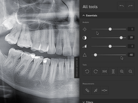 App ux aplication x-ray
