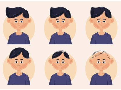 Hair Loss Stages Illustration head age bald hairline male vector illustration stages loss hair