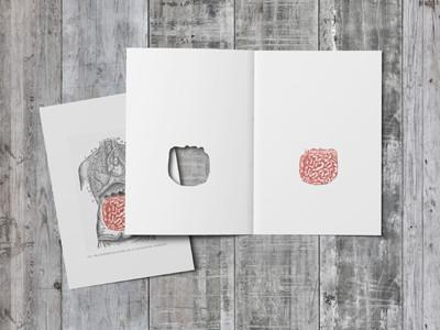 Post Surgery Greeting Card - Intestines