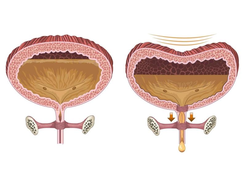 Retención de líquidos conductor presión corte transversal orina riñón liquids retention vejiga