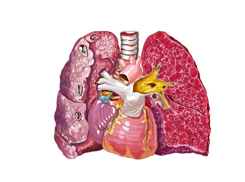 Pulmones enfermedad pulmones internos grasa ventrículos aorta traquea corazón ilustración vectorial krotalon ilustración médica ilustración didactica ilustrator corte trnasversal corte interior