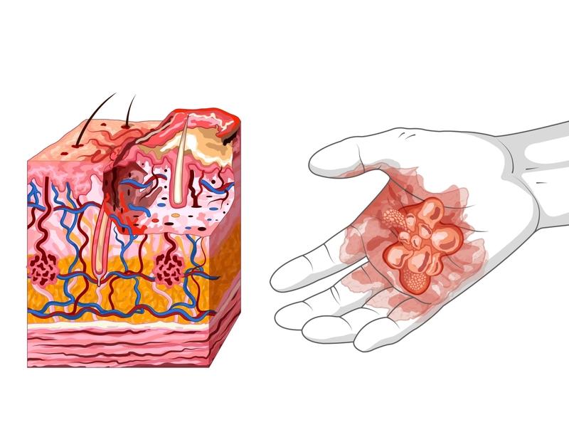 Quemadura de segundo grado lumbre fuego hiodermis epodermis primeros auxilios dermis capas de la piel atención