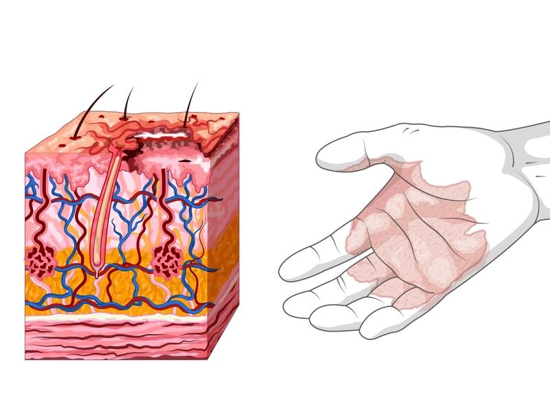 Quemadura de primer grado krotalon ilustración didáctica epidermis hipodermis dermis accidente fuego quemaura primeros auxilios