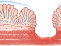 Stomach ulcer full