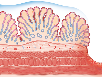 Stomach Ulcer stomach ulcer stomach ulcer medical science tissue illustration medical illustration photoshop