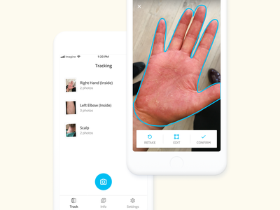 Imagine - Skin Tracking App healthcare project mobile interface daily design app android ios progress picture edit photo tracking skin tech med medtech medical