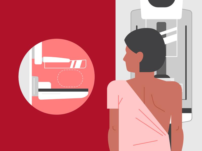 Mammogram breast medical test medical vector
