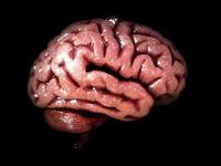 Cerebro/Brain