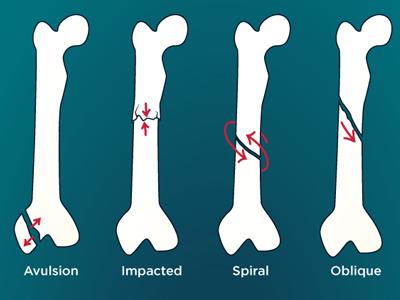 Bone Fractures Guide vector illustrator blog wellness health illustration informative visual guide orthopedics blue break bone