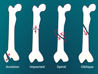 Bone Fractures Guide