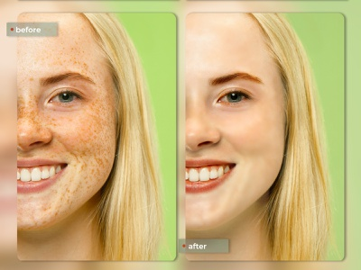 Before - after skin retouching portrait fashion highend editing photo compositing image retouching skin retouching photo manipulation photo editing adobe photoshop graphic design digital imaging