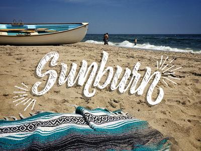 LB&L •|002|• Sunburn