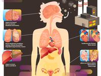 Air pollution health effect